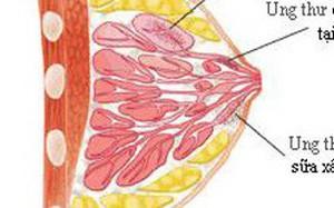 Tiến sĩ viện K chỉ 3 nguyên nhân gây ung thư vú và 1 việc bắt buộc phải làm để phòng bệnh