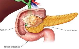 Ung thư tuỵ phát triển rất lặng lẽ: Đừng bỏ qua nguy cơ gây bệnh và dấu hiệu nhận biết!