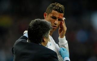 """Ronaldo đổ máu tìm lại niềm kiêu hãnh, Real Madrid thắng """"7 sao"""""""