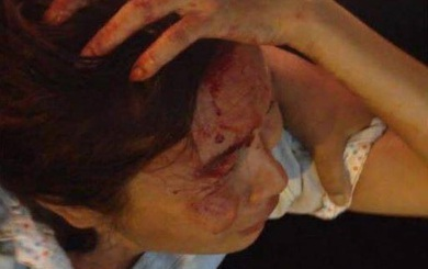 Bị công an nắm tóc, người bán hàng rong ở Sài Gòn chảy máu bê bết trên đầu
