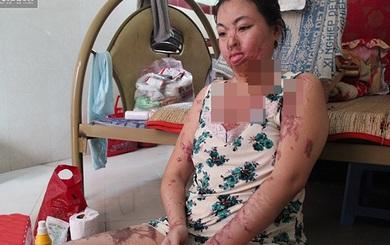 """""""Người mẹ ma"""" ở TP HCM: """"Ước gì tôi biết vì sao mình bị tạt axit tàn độc đến thế"""""""