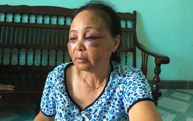 Hai phụ nữ bị đánh khi đi bán tăm: Một nhóm người tới gửi lời xin lỗi
