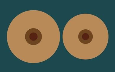 Tại sao ngực chị em phụ nữ lại bên to bên nhỏ?
