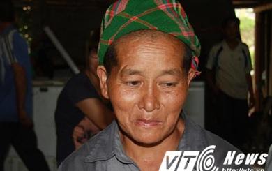 Chuyện lạ ở Yên Bái: Hàng loạt phụ nữ không hiểu sao bỗng dưng bị… móm