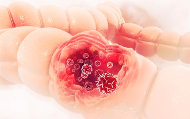 Người làm được 6 việc này sẽ giảm 50% nguy cơ mắc ung thư đại tràng: Hãy sớm áp dụng