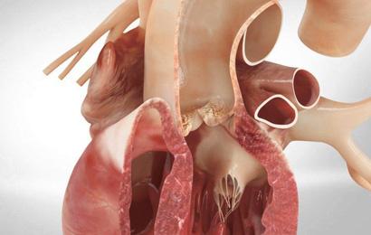 GS tim mạch: Hãy cẩn thận với căn bệnh có tỷ lệ tử vong lên tới 50% chỉ trong vòng 48 giờ