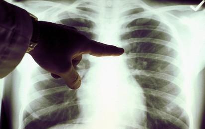 Cẩn trọng với những bệnh nguy hiểm chết người nhưng lại không có triệu chứng rõ ràng và dễ bị bỏ qua