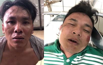 Hai thanh niên cướp xe máy, cầm mã tấu cố thủ trong khách sạn, công an nổ súng vây ráp