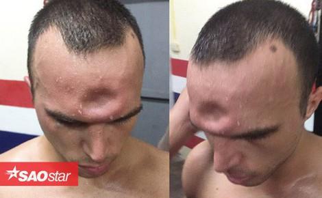 Võ sĩ Muay Thái lõm trán vì dính cú đòn cùi chỏ tàn khốc của đối thủ