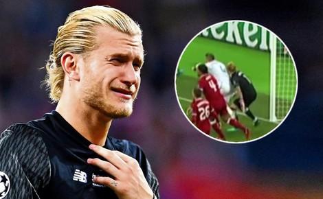 """Hé lộ tổn thương đáng sợ mà thủ môn Liverpool phải chịu sau """"độc thủ"""" của Ramos"""