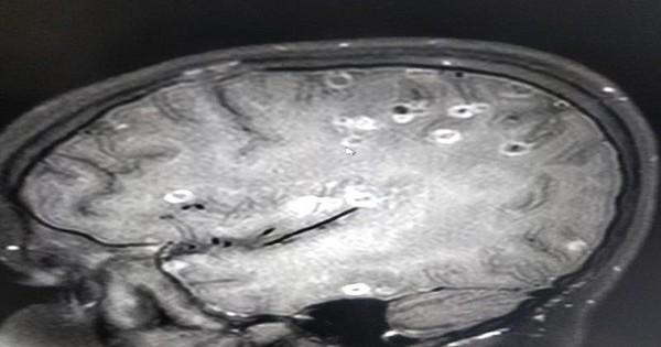 Kinh hoàng: Não bé 8 tuổi có 100 trứng sán dây