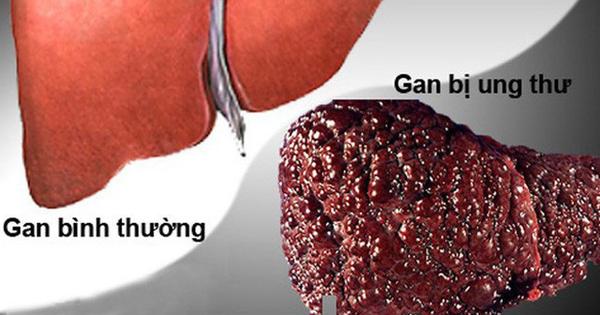 Căn bệnh ung thư đứng đầu Việt Nam: Hàng chục triệu người mang