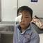 Bé trai 8 tuổi bị chó cắn thủng mắt, bố mẹ nhìn thấy nhưng không kịp trở tay