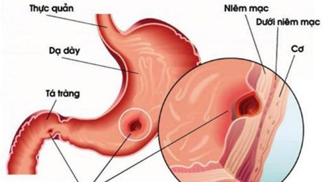 Muốn không ung thư, phải thương lấy dạ dày: Ai cũng phải biết 7 bí quyết sau mà áp dụng