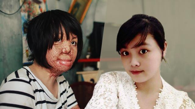 """[Video] """"Hoa hậu"""" bị chồng đốt khiến NSƯT Chí Trung đau đớn: Xấu xí nhưng không bị áp lực xinh đẹp bị chồng ghen"""