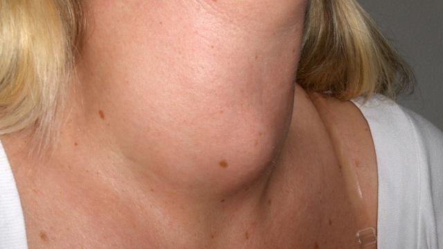 Lương y đầu ngành chia sẻ 12 bài thuốc đơn giản chữa bướu cổ
