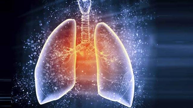 [Đọc nhanh] Dấu hiệu ung thư phổi: Nhiều người phát hiện bệnh quá muộn vì bỏ qua cảnh báo