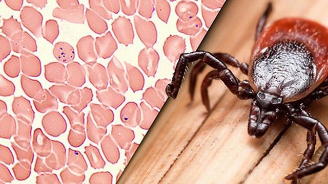 Chỉ với một vết cắn của loài côn trùng này, bạn có nguy cơ mắc ít nhất 6 loại bệnh chết người