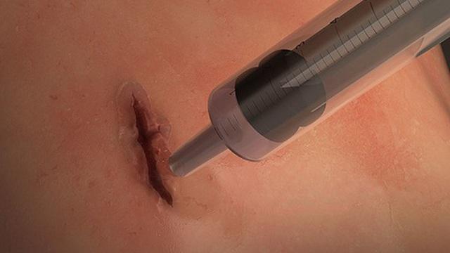 Phát minh keo dán vết thương trong 60s, tiềm năng cứu sống hàng triệu người