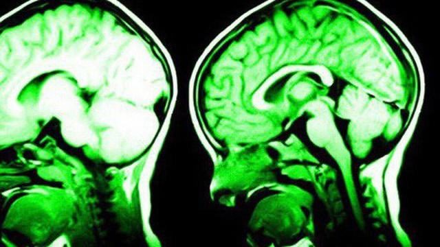 6 việc cực đơn giản này sẽ giúp não bộ của bạn được nâng cấp theo đúng nghĩa đen