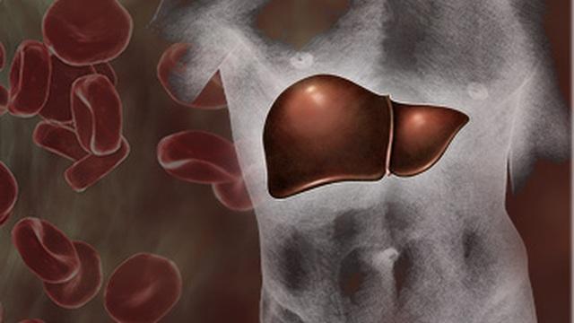 Trong các bệnh ung thư bắt nguồn từ gan, đây là loại phổ biến nhất!