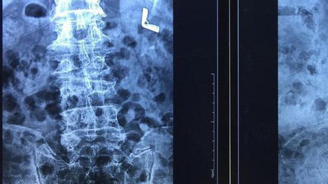 Đi thầy lang chữa đau lưng, cụ ông bị teo chân