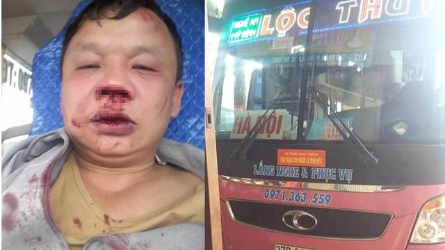 Vụ tài xế xe khách bị côn đồ chặn đánh: Chủ xe hé lộ có điện thoại tố lái xe trêu ghẹo vợ người