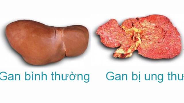 5 dấu hiệu cảnh báo viêm gan B biến thành ung thư gan bạn cần biết càng sớm càng tốt