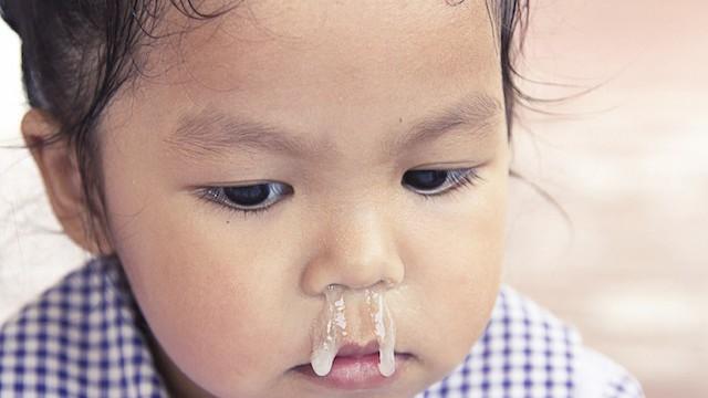 Các bác sĩ cảnh báo về cách chữa sổ mũi bằng tỏi ngâm nước muối sinh lý đang được các mẹ lan truyền