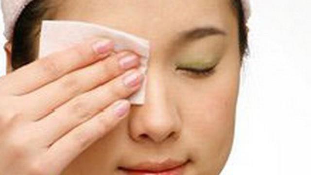 Gỉ mắt khi nào là bất thường?