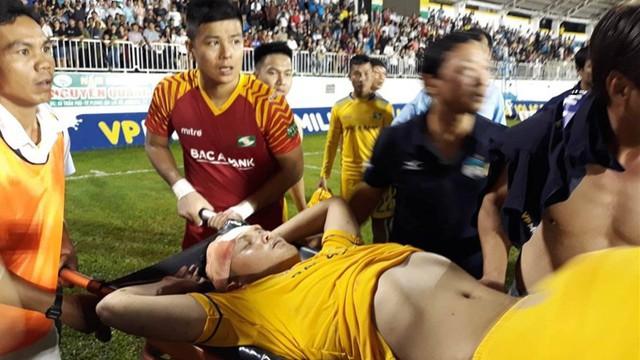 Hy hữu: Xe cứu thương sân Pleiku bỏ về khi cầu thủ SLNA chấn thương nặng