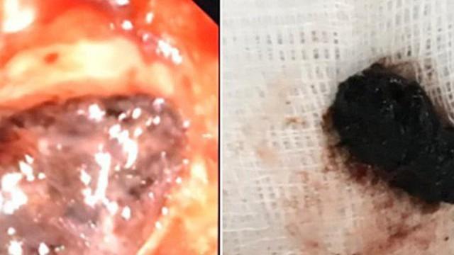 Bệnh nhân cao tuổi bị hạt ô mai gây suy hô hấp cấp