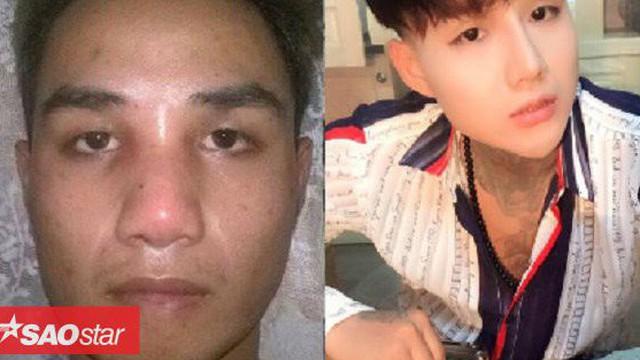 Sau 16 lần phẫu thuật thẩm mỹ, chàng trai khiến dân mạng tròn mắt ngạc nhiên bởi ngoại hình gây sốc