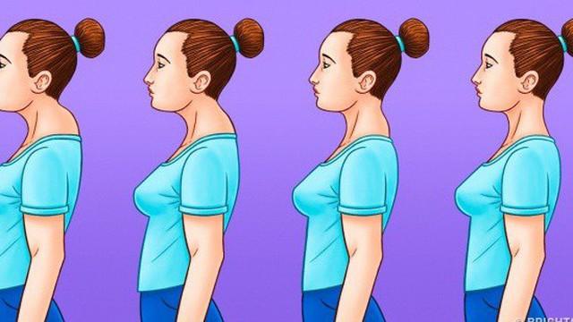 Nếu bạn quá buồn lòng vì bỗng nhiên dáng xấu đi do vai u, lưng còng, có bướu sau gáy thì hãy làm ngay 6 điều này
