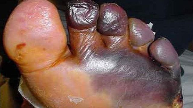 Chỉ bị vài mụn nước, khi đến viện suýt bị cắt cụt chân: Lời cảnh báo chưa bao giờ muộn