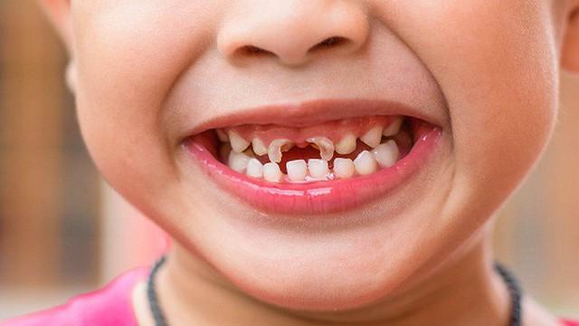 Răng sữa bị mòn dần, vì sao?