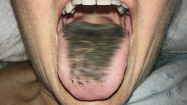 """Người phụ nữ có lưỡi đen sì vì """"mọc lông"""": Chuyên gia cảnh báo thói quen mà nhiều người không để ý cũng là nguyên nhân gây bệnh"""
