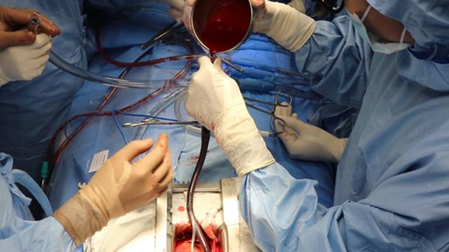 TP HCM: Mổ tim miễn phí cho mọi đối tượng
