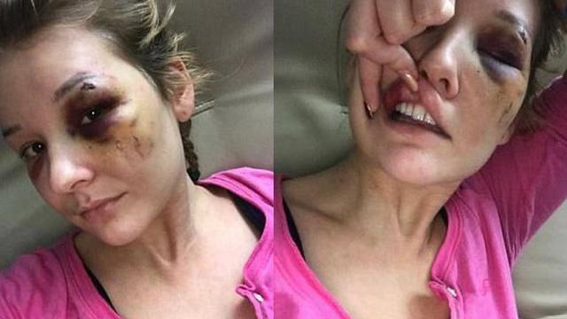 Yêu nhau được 3 tháng, cô gái bị bạn trai đánh đập tàn nhẫn và suýt bán vào động mại dâm