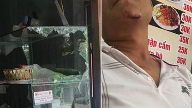 Mẹ trẻ 'khoe' bị chồng đánh và đòn phản công dữ dội khiến chị em tấm tắc khen và khoe chiến tích