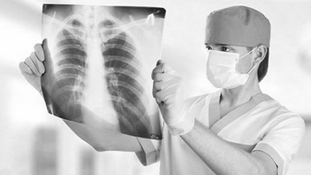 """Căn bệnh ung thư gây tử vong hàng đầu """"giết"""" đến 1,7 triệu người năm 2018"""