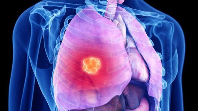 4 việc quan trọng phải làm để ngăn ung thư phổi: Tiếc rằng nhiều người biết quá muộn