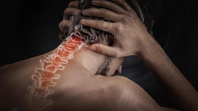 Điều trị đau đầu sau gáy do bệnh lý cột sống hiệu quả bằng cách nào?