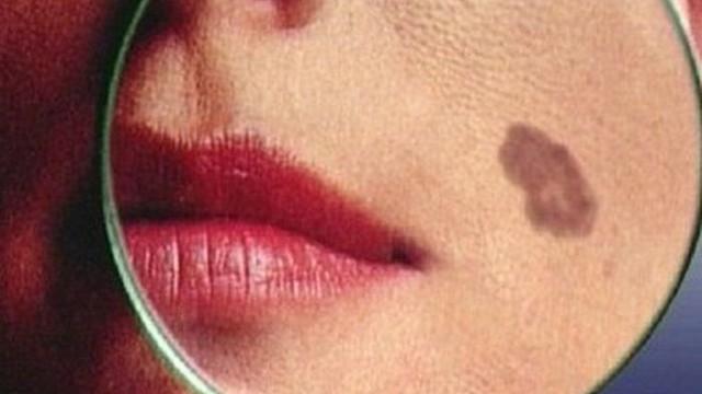 Căn bệnh ung thư từ nốt ruồi, di căn cực nhanh: Dấu hiệu khác biệt cần khám ngay