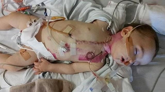 Bé 8 tháng tuổi bị tàn tật vĩnh viễn do nuốt phải thứ nhiều cha mẹ không chú ý đến và hay vứt linh tinh quanh nhà
