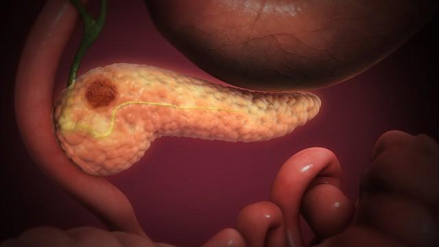 3 dấu hiệu ung thư tuyến tụy giúp phát hiện sớm hơn: Khám muộn thường không thể cứu