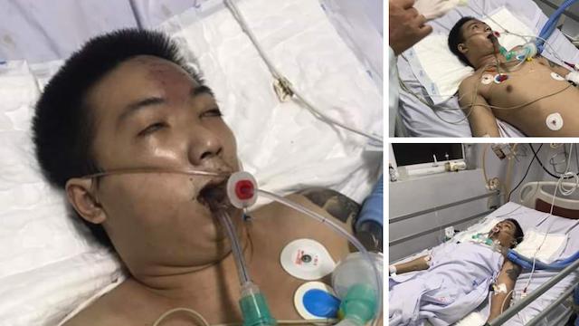 Công an thông tin vụ bị can tự té ngã trong buồng giam, nhập viện cấp cứu do ngưng tim
