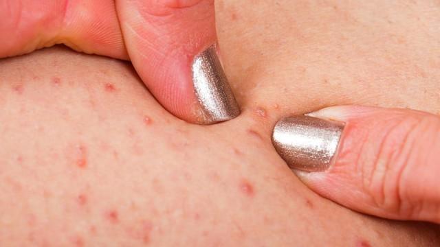 Các biểu hiện của viêm nang lông