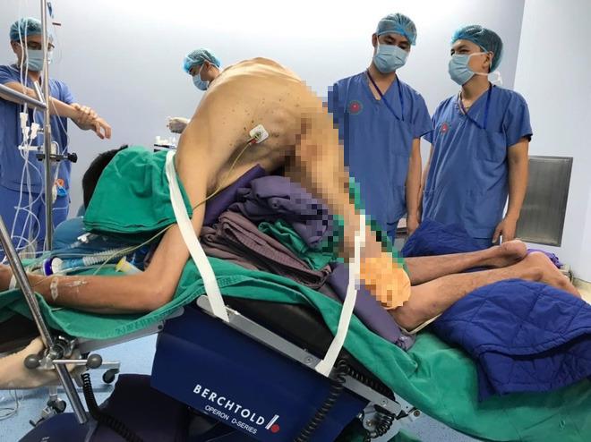 Hà Nội: Kỳ lạ người đàn ông lưng gãy gập như tôm suốt 22 năm, phải nằm bàn mổ đặc biệt - Ảnh 2.