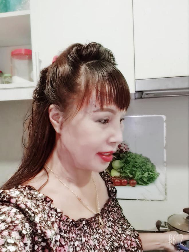 """Cô dâu 62 tuổi tự tin khoe diện mạo mới sau cuộc """"đại phẫu"""" bị biến chứng lệch mặt: Nhan sắc hiện tại gây ngỡ ngàng - Ảnh 3."""
